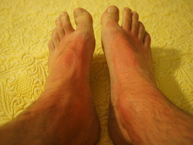 natural sunburn treatment home remedy on sunburnt feet